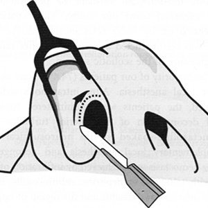 Marginal incision.