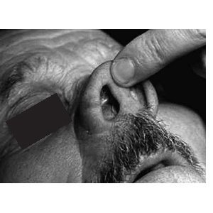 A soft, smooth-surfaced mass on the floor of the right nasal vestibule causing nasal obstruction.